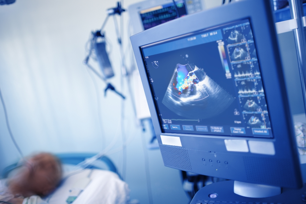 Echocardiography Services